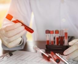 Técnicas Imunohematológicas no Banco de Sangue